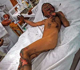 Barn som offer for NATO-bombning i Afghanistan - Rawa